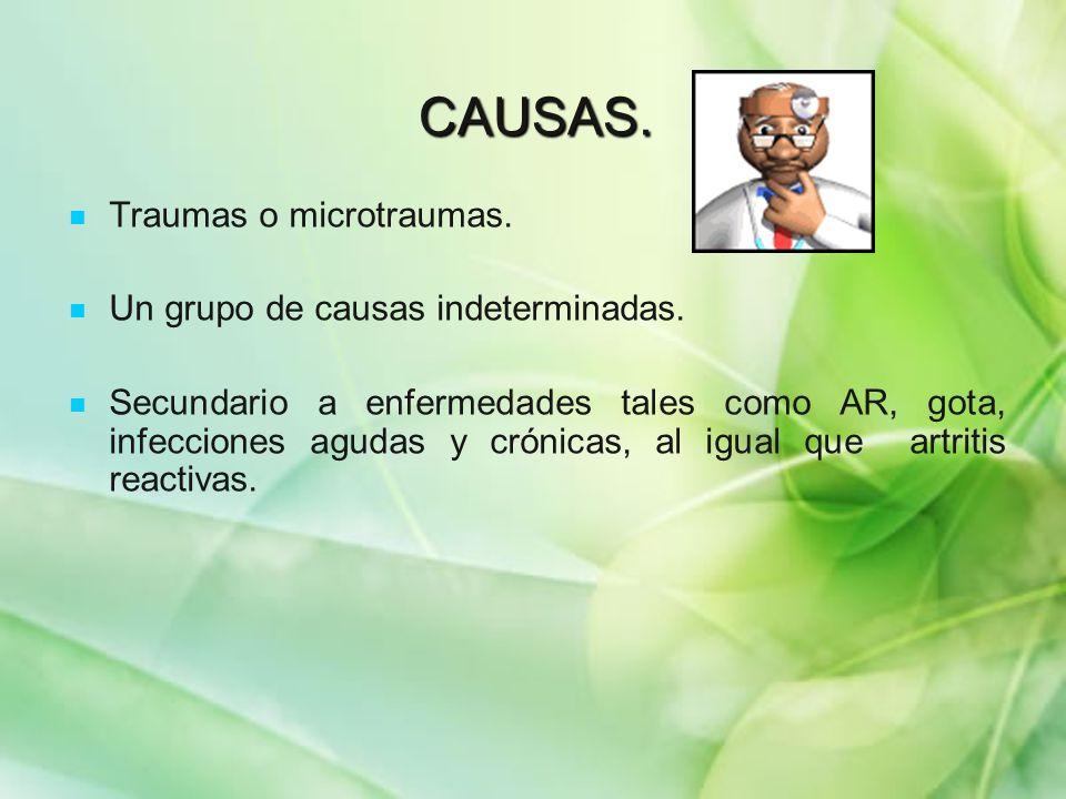CAUSAS. Traumas o microtraumas. Un grupo de causas indeterminadas.