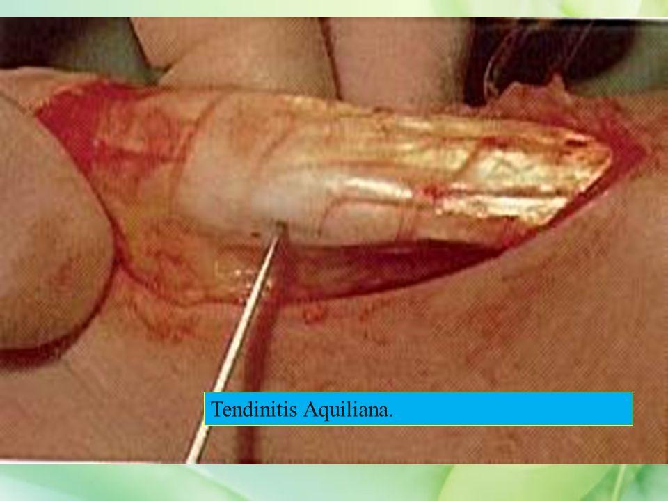 Tendinitis Aquiliana.