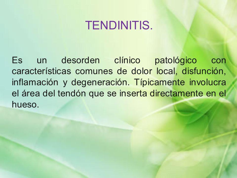 TENDINITIS.