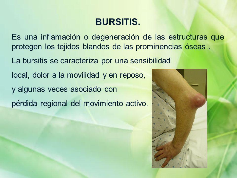 BURSITIS.Es una inflamación o degeneración de las estructuras que protegen los tejidos blandos de las prominencias óseas .