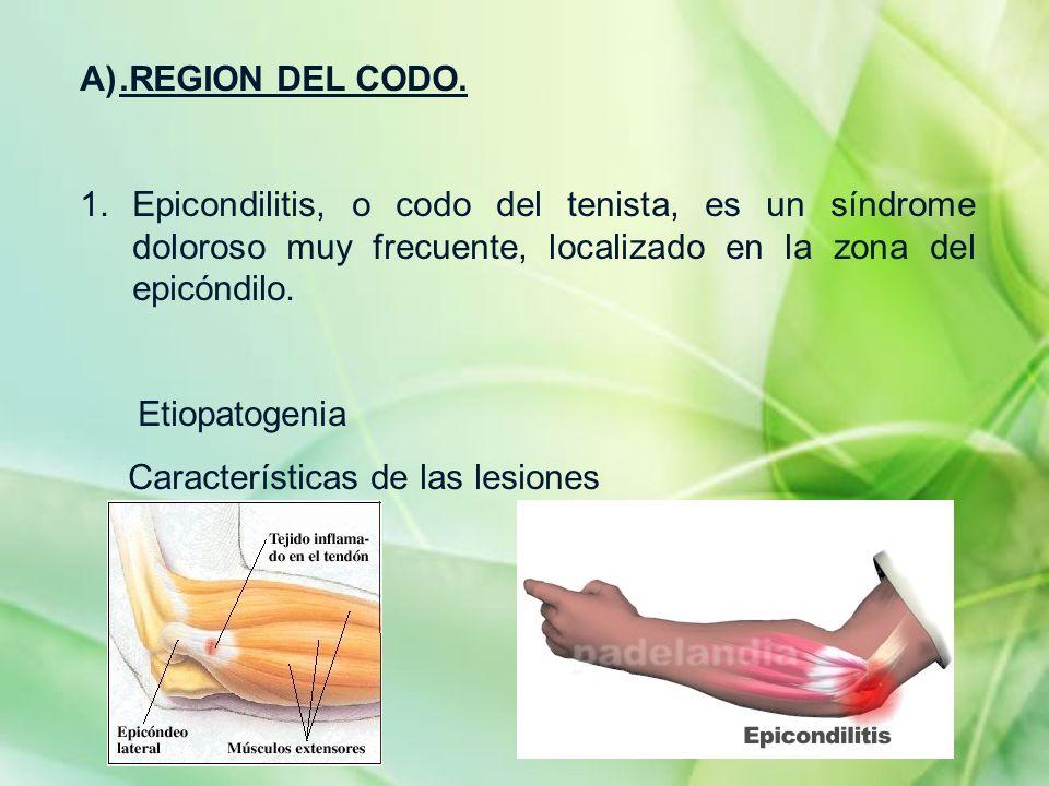 .REGION DEL CODO. Epicondilitis, o codo del tenista, es un síndrome doloroso muy frecuente, localizado en la zona del epicóndilo.