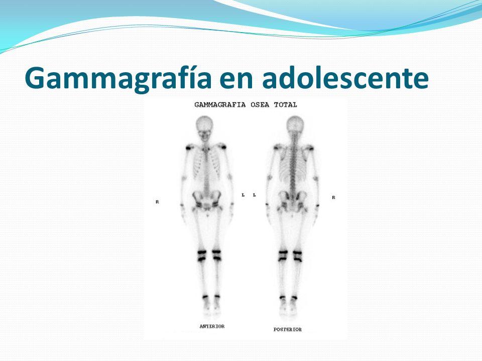 Gammagrafía en adolescente