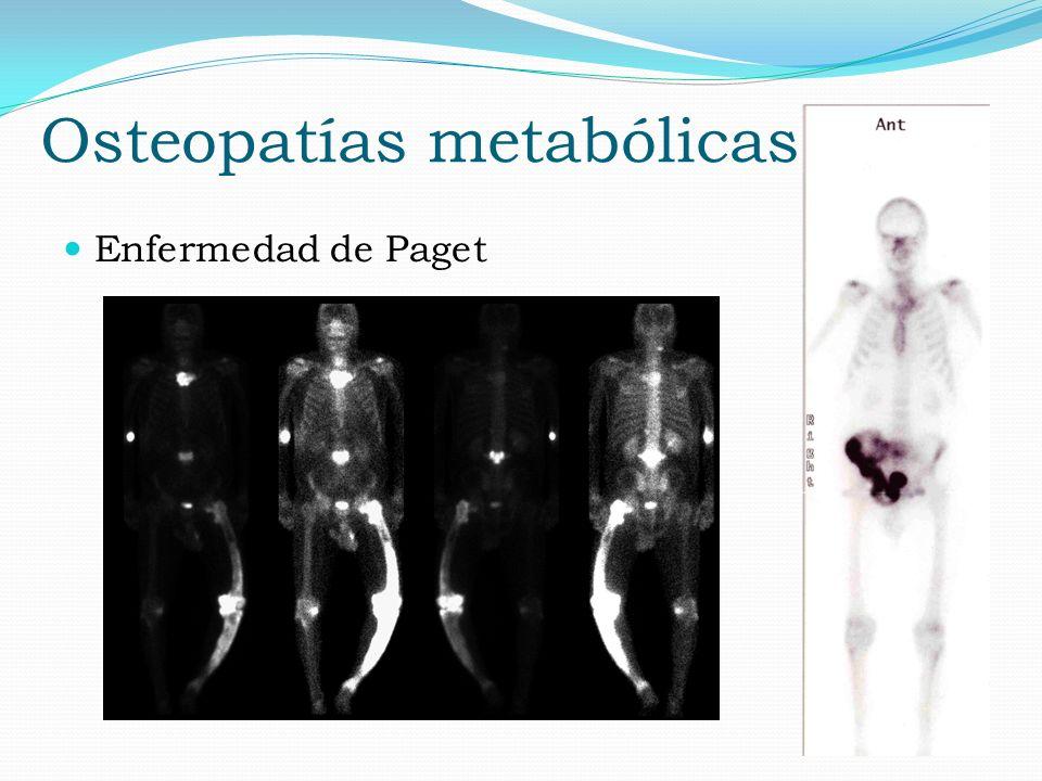 Osteopatías metabólicas