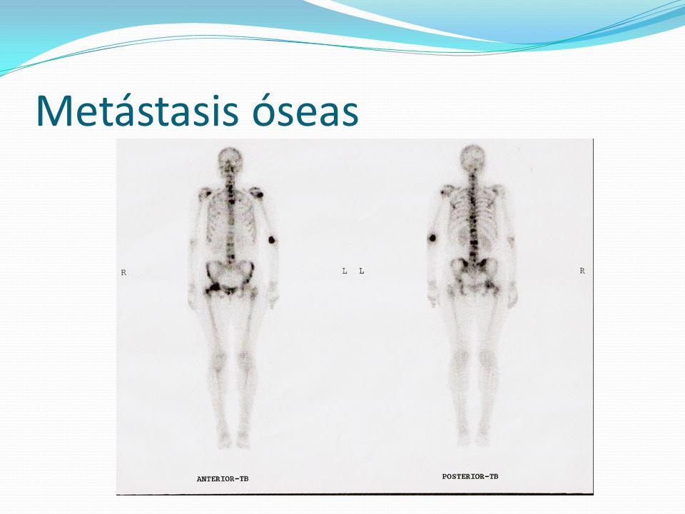 Metástasis óseas