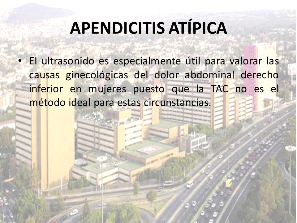 APENDICITIS ATÍPICA