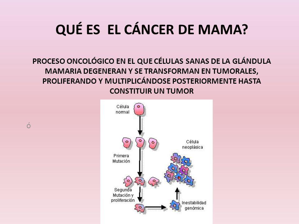 Qué es el cáncer de mama Proceso oncológico en el que células sanas de la glándula mamaria degeneran y se transforman en tumorales, proliferando y multiplicándose posteriormente hasta constituir un tumor