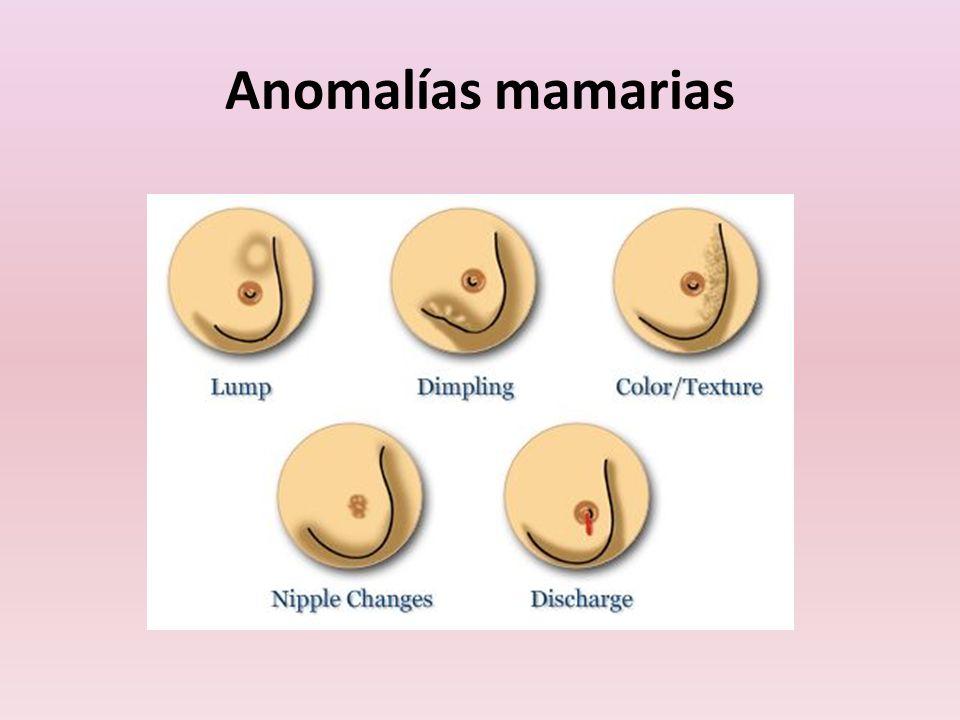 Anomalías mamarias