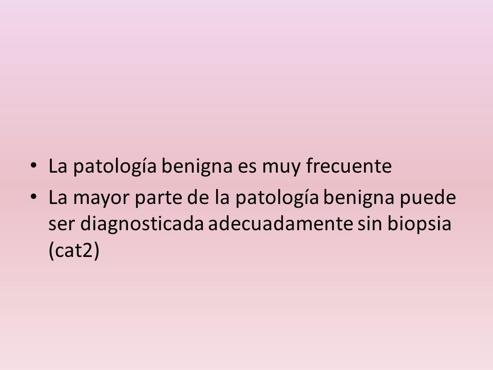 La patología benigna es muy frecuente
