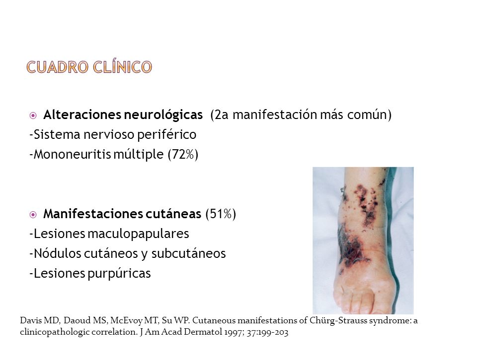 Cuadro clínico Alteraciones neurológicas (2a manifestación más común)