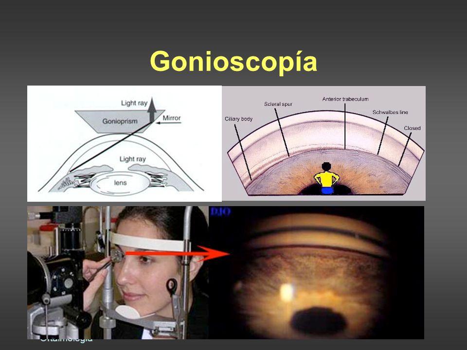Gonioscopía Dra. Raquel Benavides Oftalmología