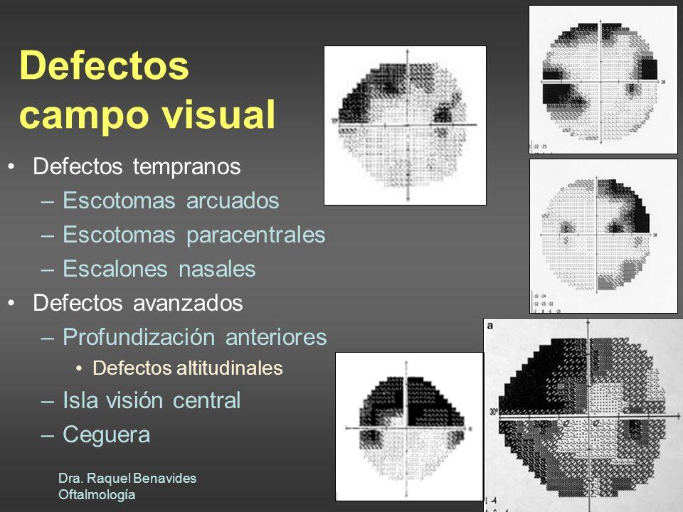 Defectos campo visual Defectos tempranos Escotomas arcuados