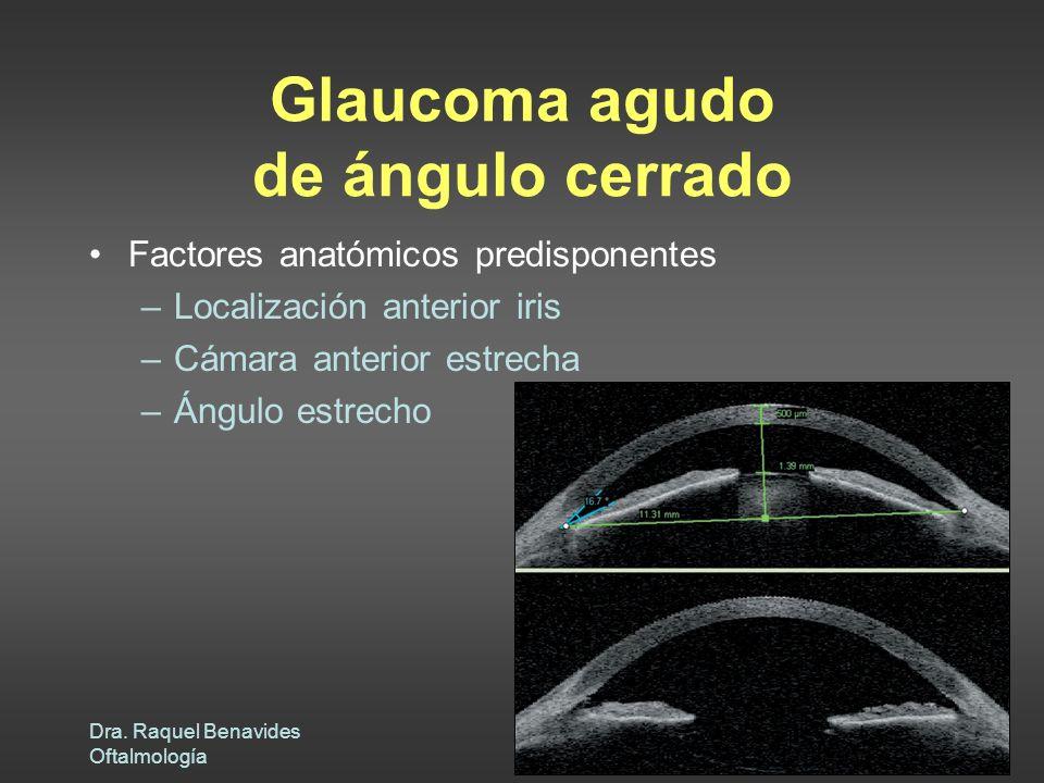 Glaucoma agudo de ángulo cerrado