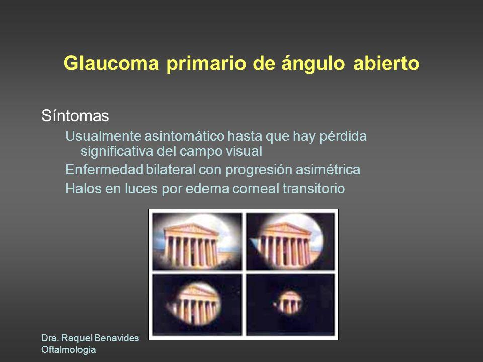Glaucoma primario de ángulo abierto