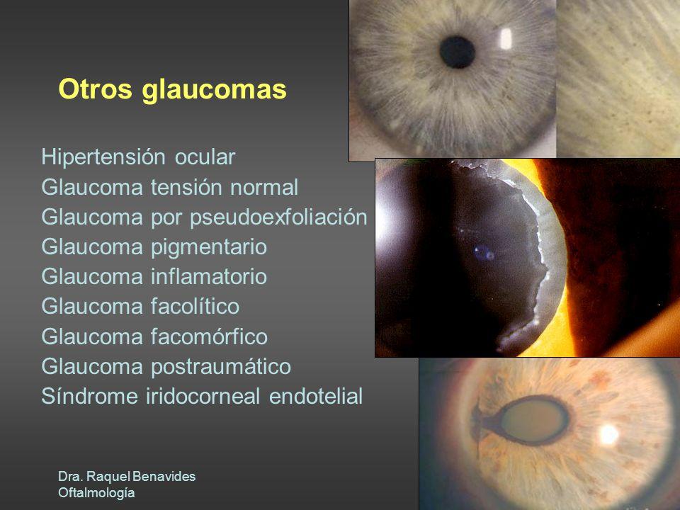 Otros glaucomas Hipertensión ocular Glaucoma tensión normal