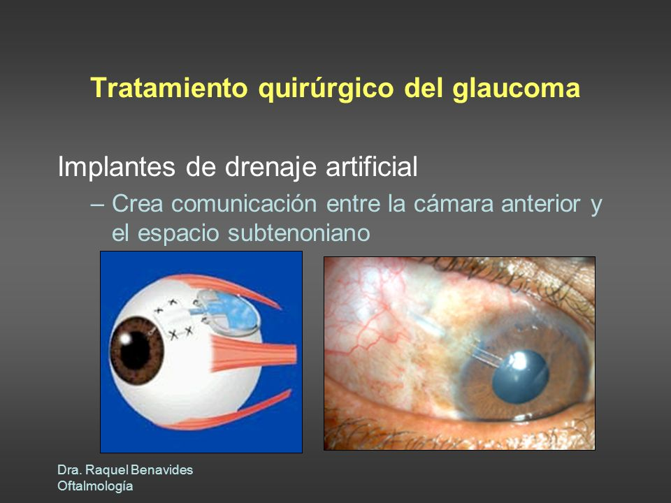 Tratamiento quirúrgico del glaucoma