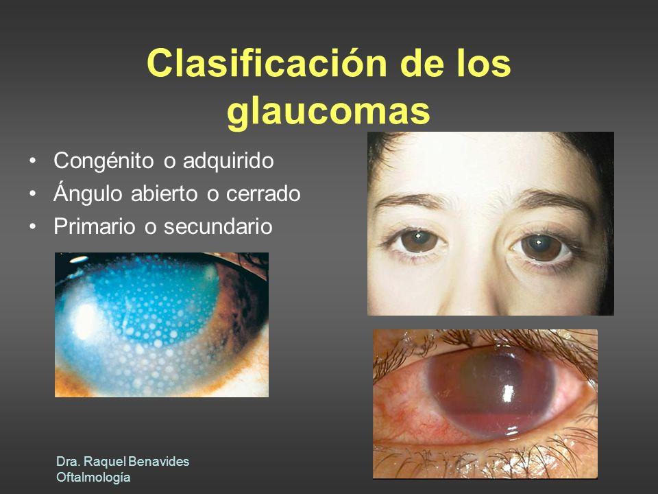 Clasificación de los glaucomas