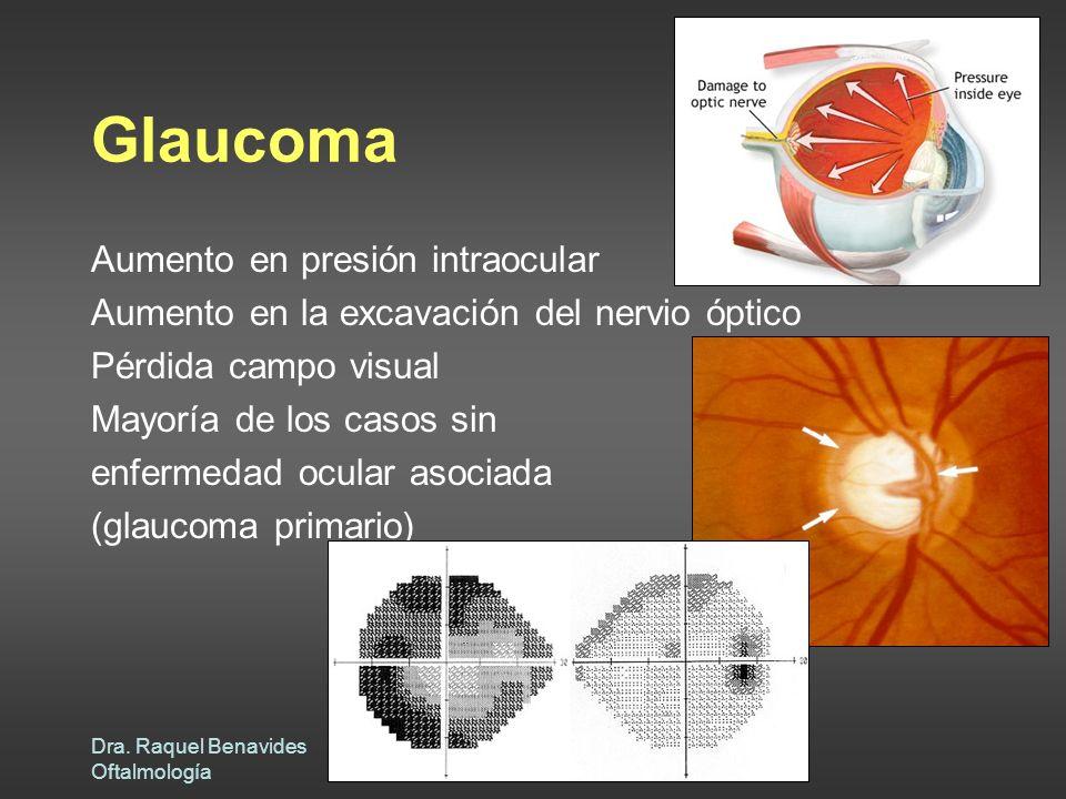 Glaucoma Aumento en presión intraocular