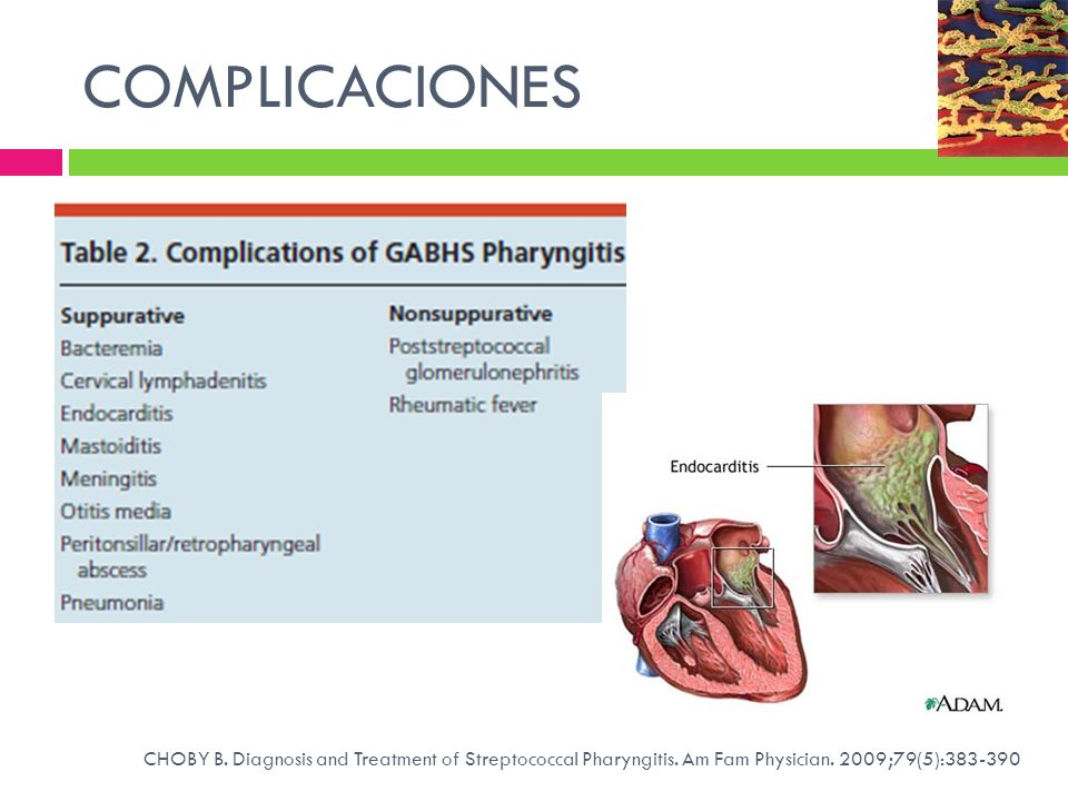 COMPLICACIONES CHOBY B. Diagnosis and Treatment of Streptococcal Pharyngitis.