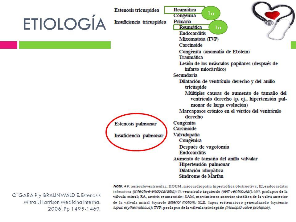 ETIOLOGÍA 1a. 1a. O´GARA P y BRAUNWALD E. Estenosis Mitral.