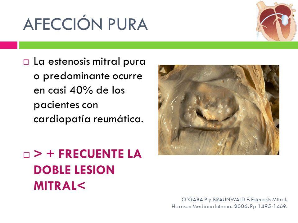 AFECCIÓN PURA > + FRECUENTE LA DOBLE LESION MITRAL<