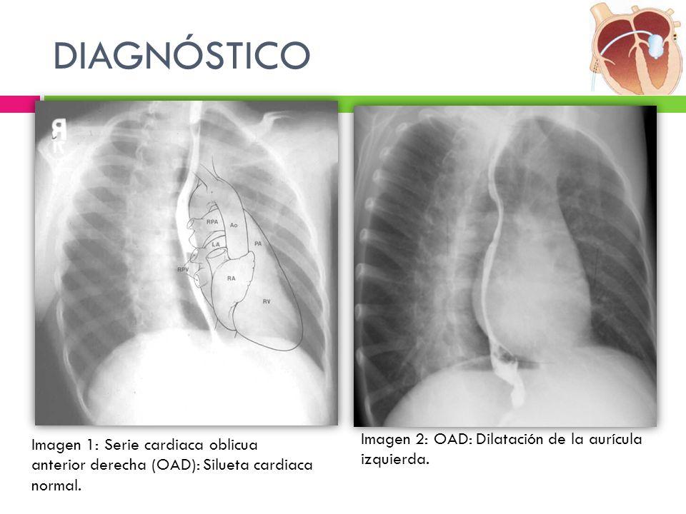 DIAGNÓSTICO Imagen 2: OAD: Dilatación de la aurícula izquierda.