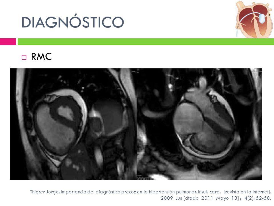 DIAGNÓSTICO RMC. Resonancia magnética nuclear cardíaca en hipertensión arterial pulmonar: hipertrofia ventricular derecha.