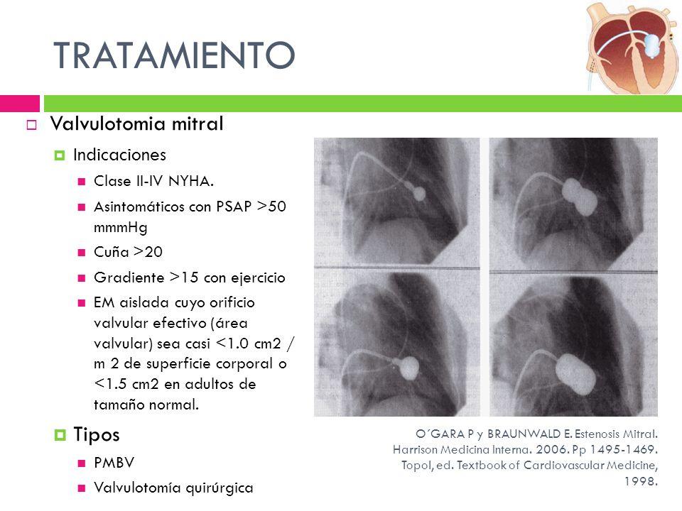 TRATAMIENTO Valvulotomia mitral Tipos Indicaciones Clase II-IV NYHA.