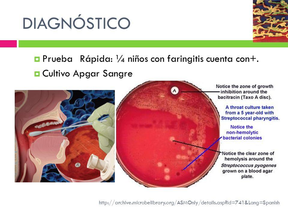 DIAGNÓSTICO Prueba Rápida: ¼ niños con faringitis cuenta con+.