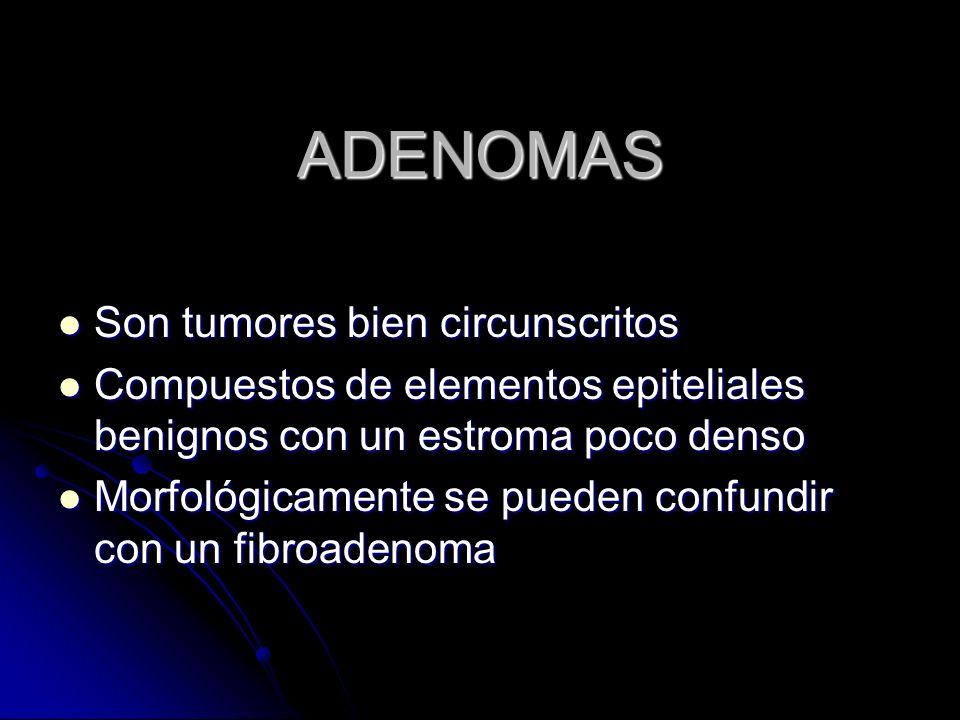 ADENOMAS Son tumores bien circunscritos