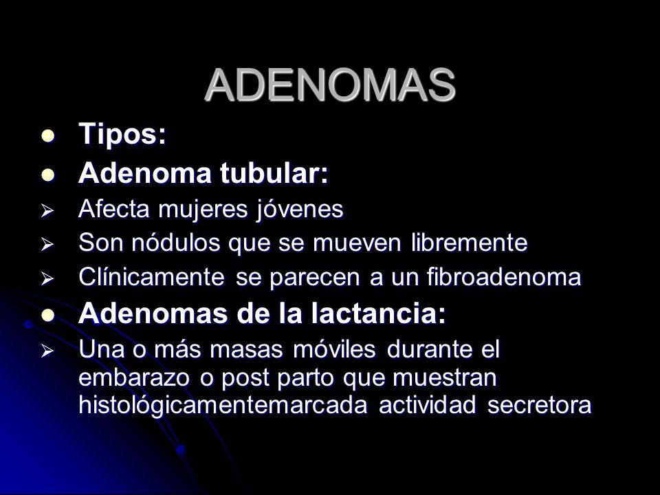 ADENOMAS Tipos: Adenoma tubular: Adenomas de la lactancia: