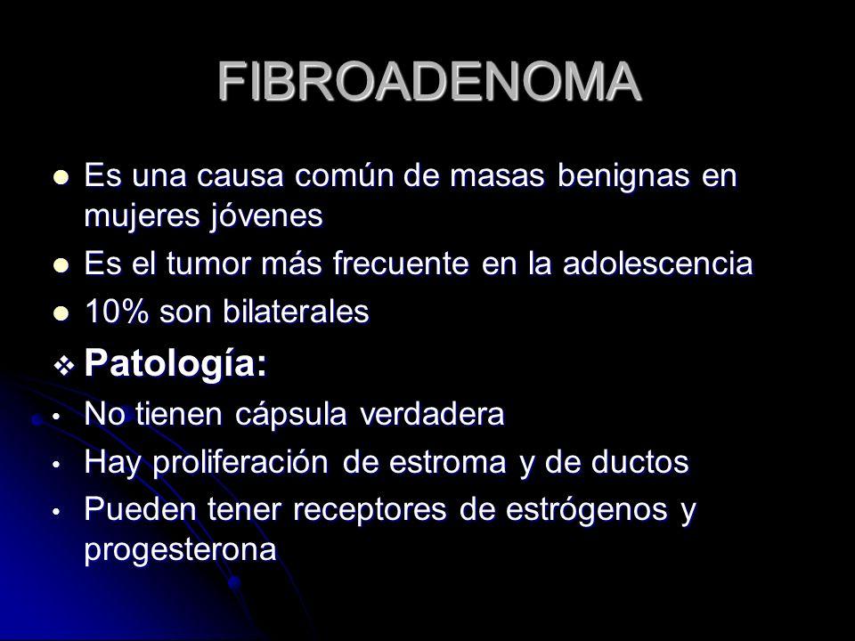 FIBROADENOMA Patología: