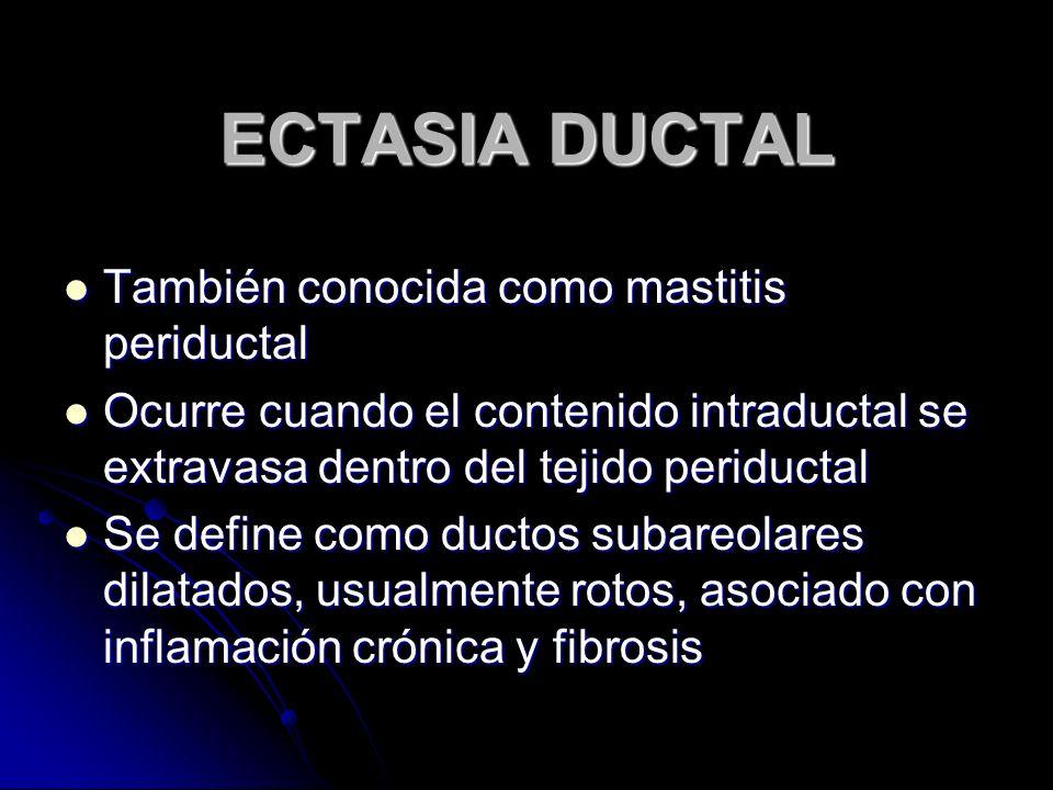 ECTASIA DUCTAL También conocida como mastitis periductal