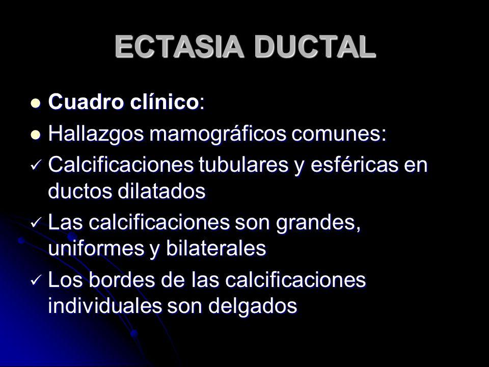 ECTASIA DUCTAL Cuadro clínico: Hallazgos mamográficos comunes: