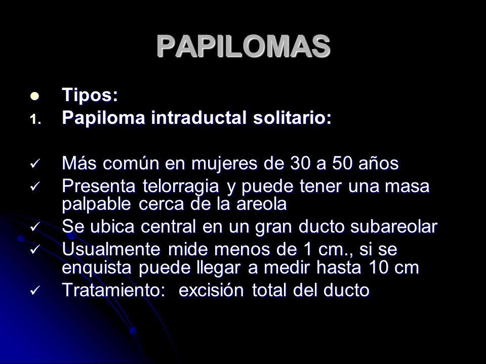 PAPILOMAS Tipos: Papiloma intraductal solitario: