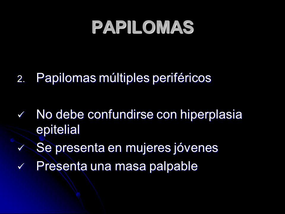 PAPILOMAS Papilomas múltiples periféricos