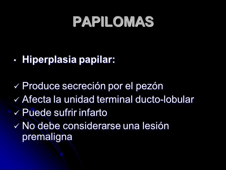 PAPILOMAS Hiperplasia papilar: Produce secreción por el pezón