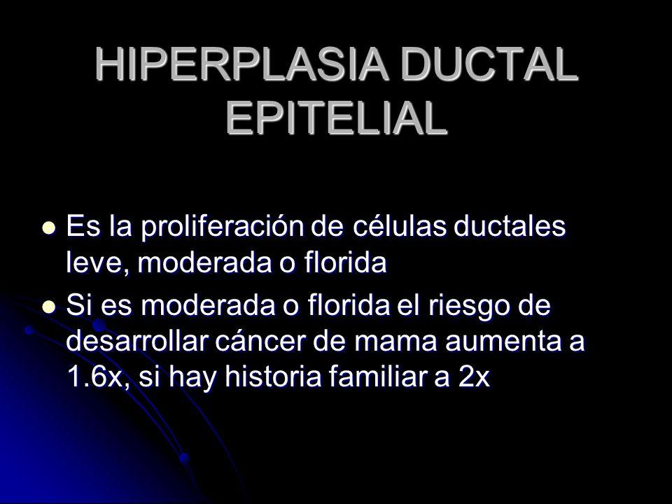 HIPERPLASIA DUCTAL EPITELIAL