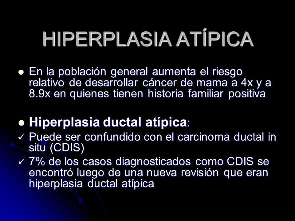 HIPERPLASIA ATÍPICA Hiperplasia ductal atípica: