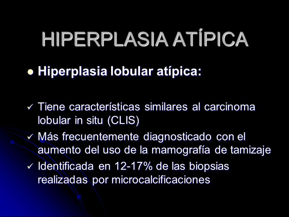 HIPERPLASIA ATÍPICA Hiperplasia lobular atípica: