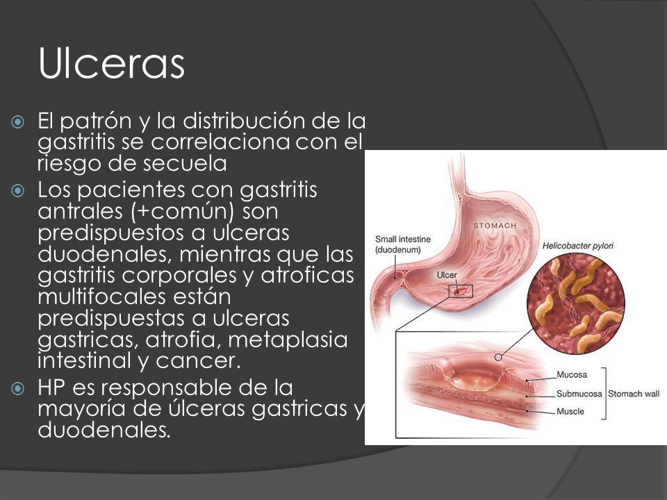 Ulceras El patrón y la distribución de la gastritis se correlaciona con el riesgo de secuela.