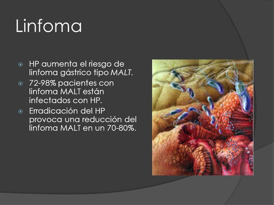 Linfoma HP aumenta el riesgo de linfoma gástrico tipo MALT.