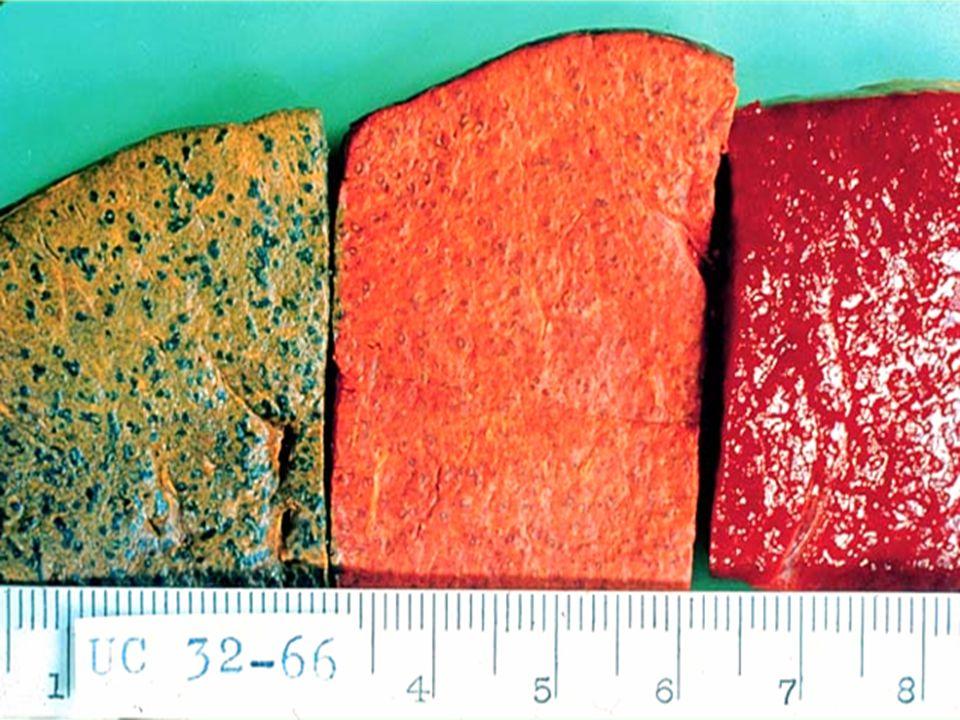 Tres cortes de bazo de sagú (257 g)