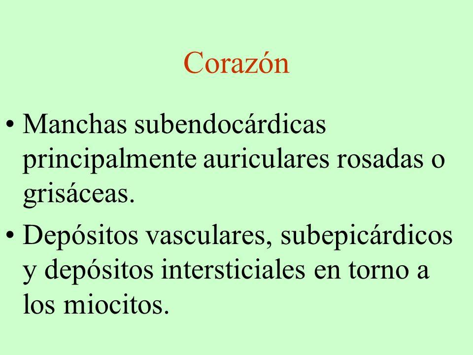 Corazón Manchas subendocárdicas principalmente auriculares rosadas o grisáceas.