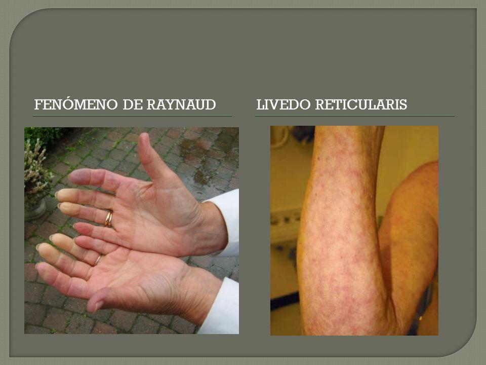 Fenómeno de Raynaud Livedo reticularis