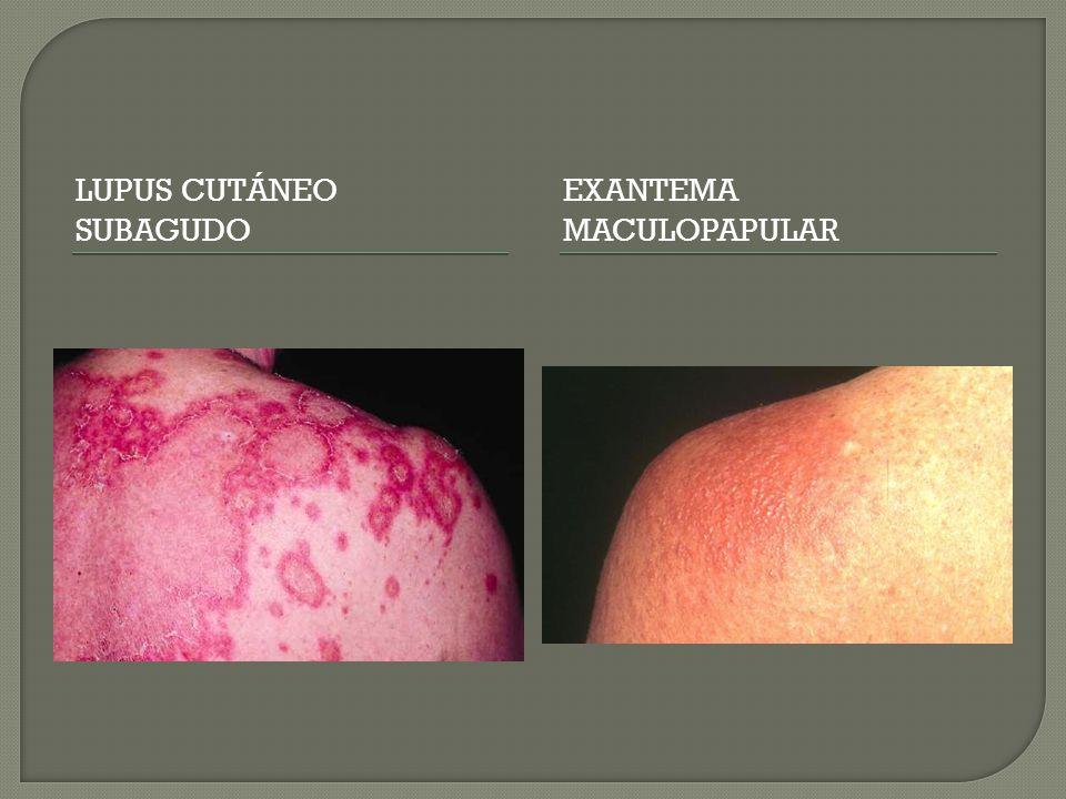 Lupus cutáneo subagudo