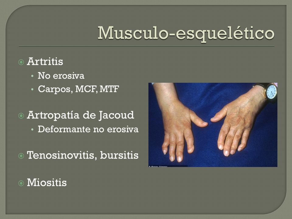Musculo-esquelético Artritis Artropatía de Jacoud