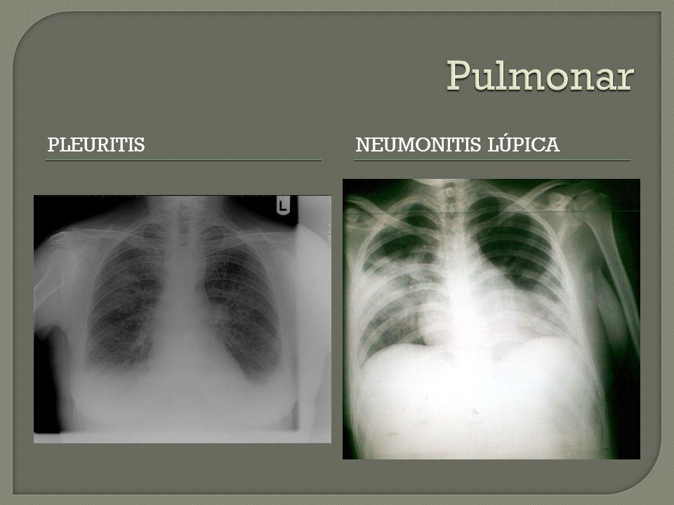 Pulmonar Pleuritis Neumonitis lúpica