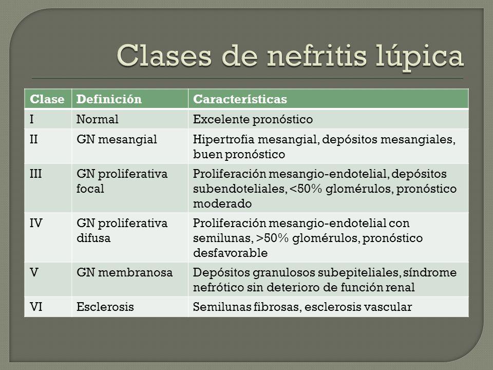 Clases de nefritis lúpica