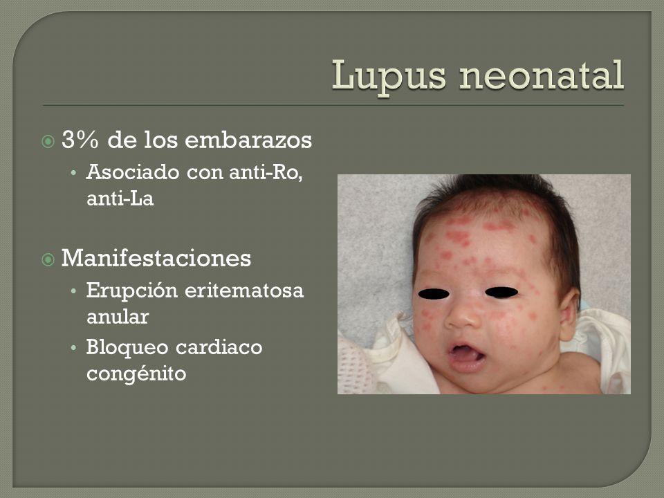 Lupus neonatal 3% de los embarazos Manifestaciones
