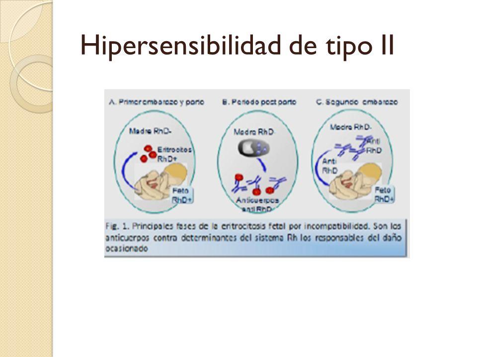 Hipersensibilidad de tipo II